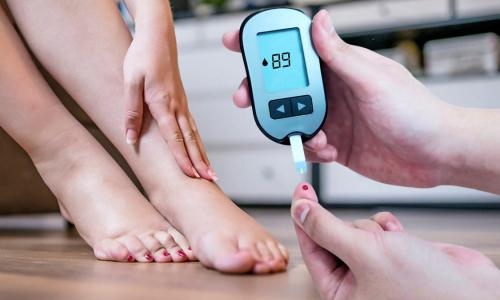 Симптомы диабета: четыре признака на ногах укажут на высокий сахар